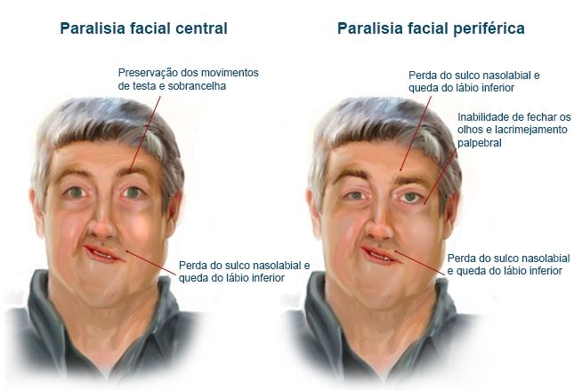 Como surge uma Paralisia Facial?